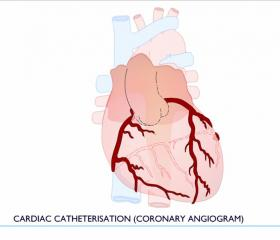 Cardiac Catheter